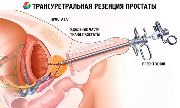zmniejsz szybką erekcję erekcja pod suszarką do włosów